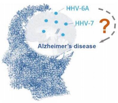 Common Infections May Lead to Alzheimer's Disease
