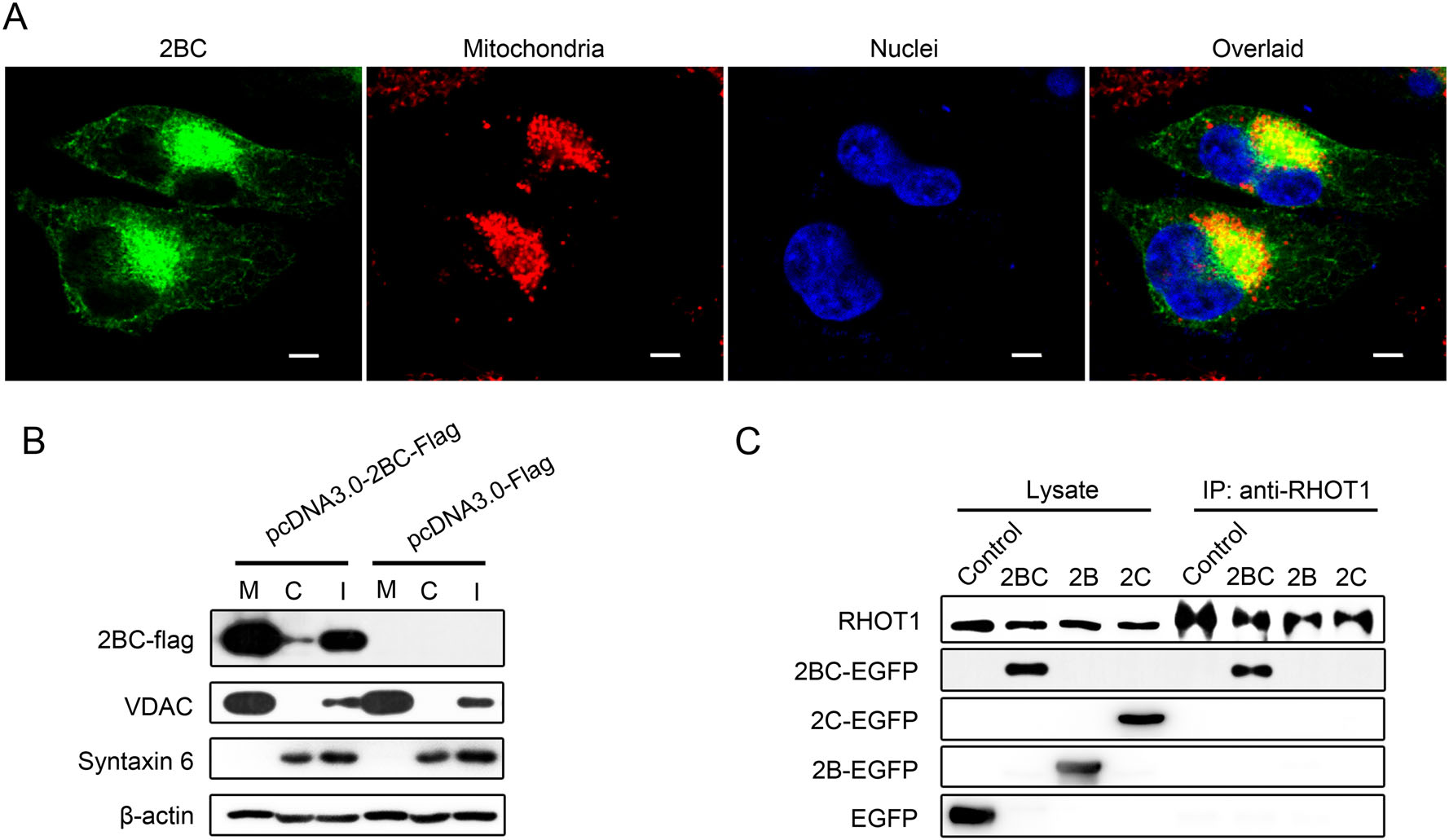 Mitochondria Redistribution in Enterovirus A71 Infected